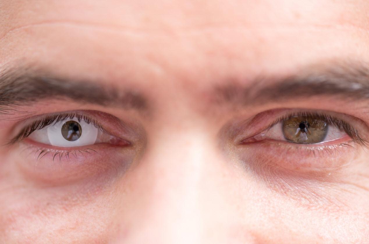 kontaktlinsen-halloween